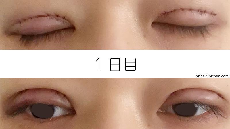 1日目の目