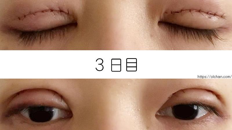 3日目の目