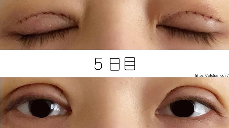 5日目の目