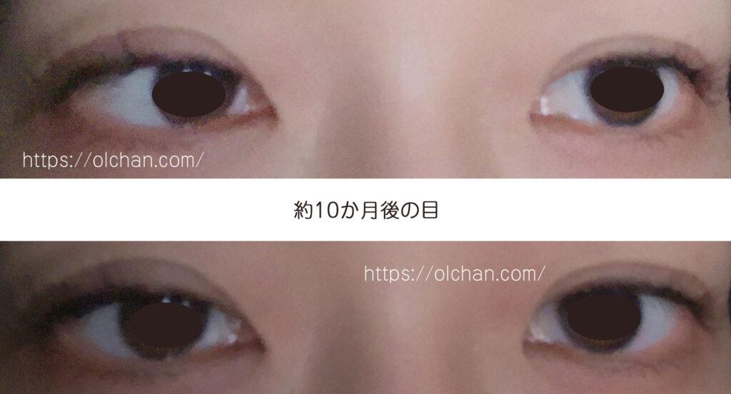 約10か月後の目 (アプリ撮影)
