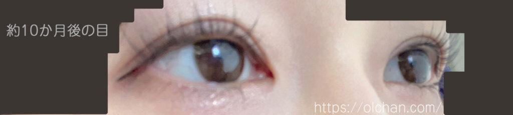 約10か月後の目 (メイク)